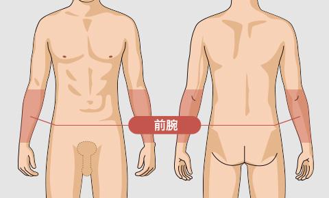ゴリラ脱毛(ゴリラクリニック)の前腕の脱毛料金