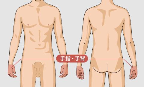 ゴリラ脱毛(ゴリラクリニック)の手や指の脱毛料金