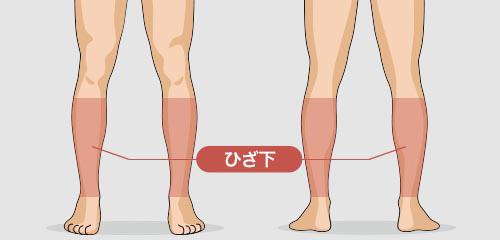 ゴリラ脱毛(ゴリラクリニック)の足(すね毛)の脱毛料金
